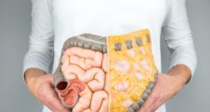 sindromul intestinului permeabil